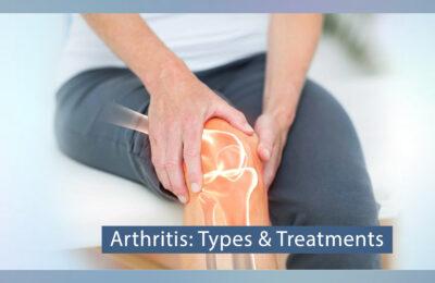 Arthritis: Types & Treatments