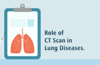 Role of CT Scan in Lung Diseases
