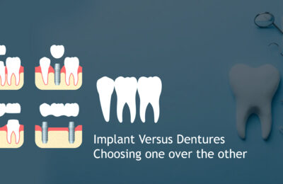 Dental implant versus Dentures – The Pros and Cons