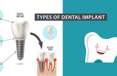 Types of Dental Implant