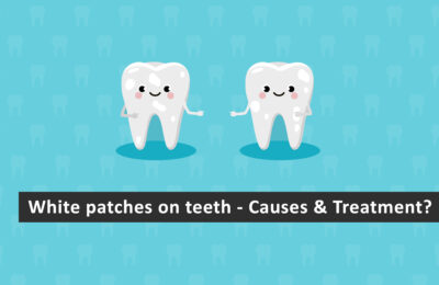 White Patches on Teeth- Causes & Treatment?