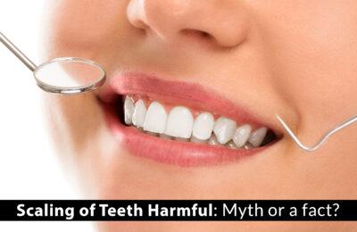 Scaling of Teeth Harmful: Myth or a fact?